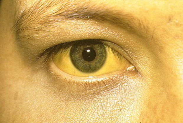 Whole Dude-Whole Colors: Coloration may reveal an underlying diseased condition. This yellow discoloration of eyes and face is called 'Jaundice' or Icterus often caused by Liver inflammation.