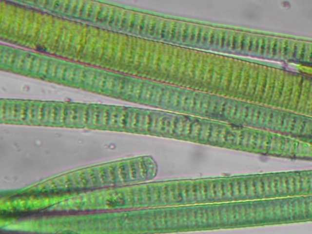 WholeDude-WholeDesigner-Chlorophyll: These filaments of Cyanobacteria are thought to be algae in the past. We speak about the Theory of Evolution and in reality the Chlorophyll molecules have retained their molecular structure over billions of years without any apparent modification.