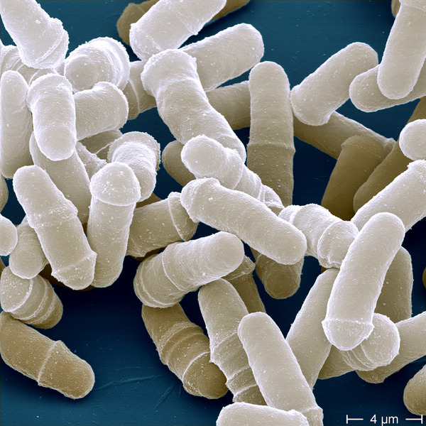 SPIRITUALITY SCIENCE - AGING AND LONGEVITY: THIS IMAGE OF DIVIDING YEAST CELLS DESCRIBES A REAL POTENTIAL IMMORTALITY IN SIMPLE ORGANISMS THAT ARE SINGLE-CELLED AND REPRODUCE BY ASEXUAL REPRODUCTION CALLED FISSION.